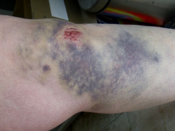leg bruises tumblr - photo #42