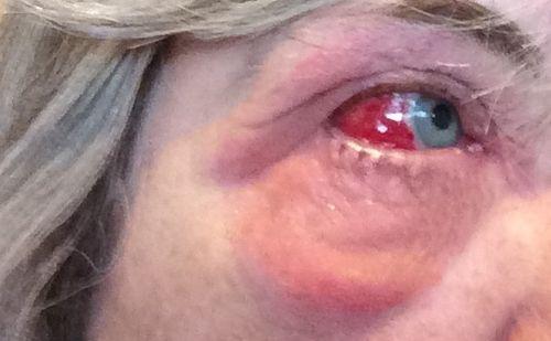 Bad eye